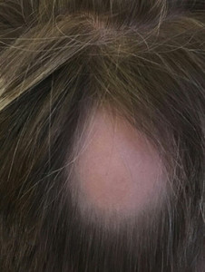 alopecia_fore