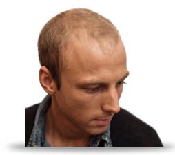 frisyrer män tunt hår